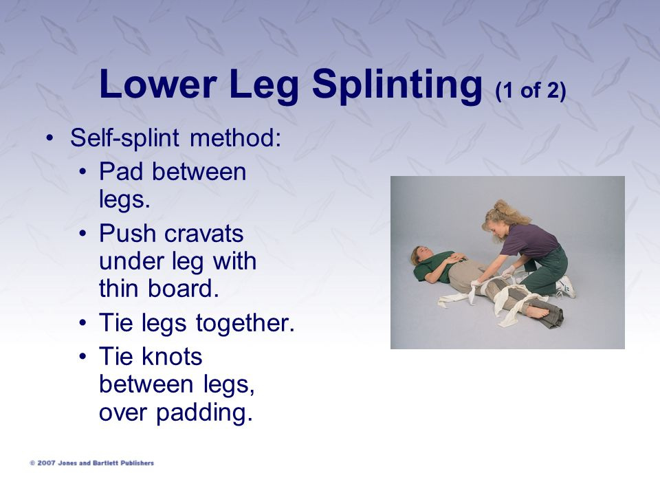 Lower Leg Splinting (1 of 2) Self-splint method: Pad between legs.