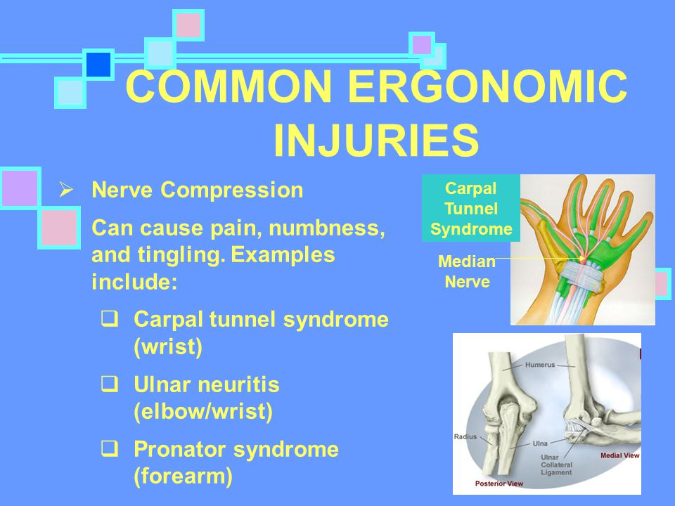 COMMON ERGONOMIC INJURIES Carpal Tunnel Syndrome Median Nerve  Nerve Compression Can cause pain, numbness, and tingling.