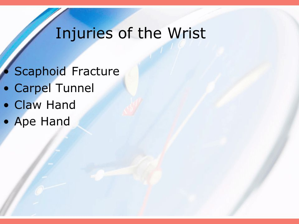 Injuries of the Wrist Scaphoid Fracture Carpel Tunnel Claw Hand Ape Hand