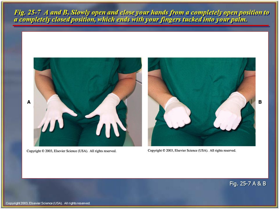 Copyright 2003, Elsevier Science (USA). All rights reserved. Fig. 25-7 A and B, Slowly open and close your hands from a completely open position to a