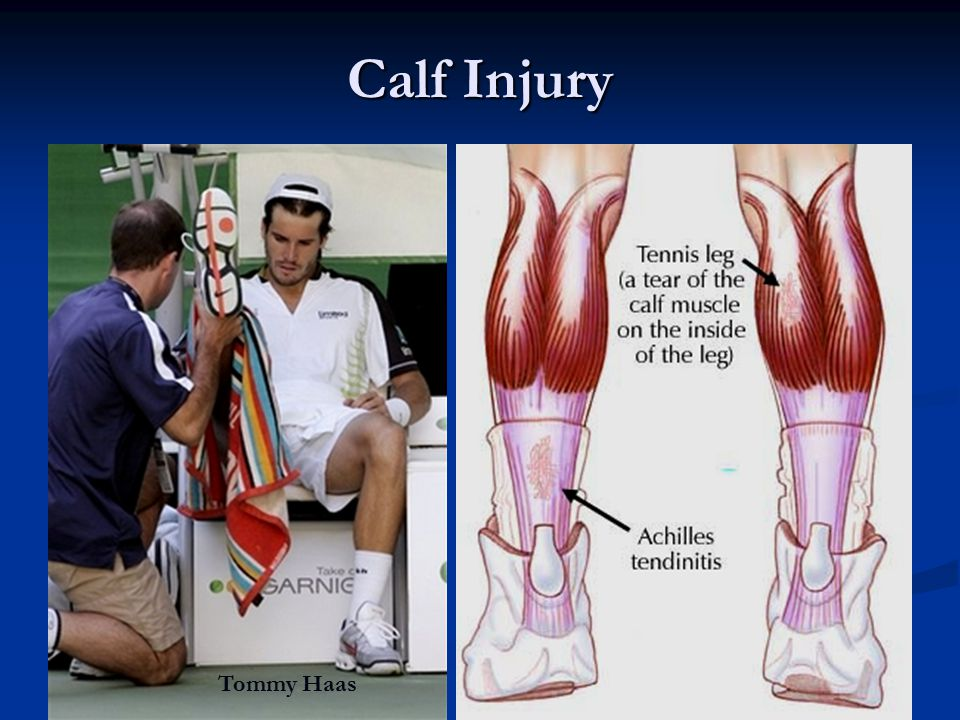 Calf Injury Tommy Haas