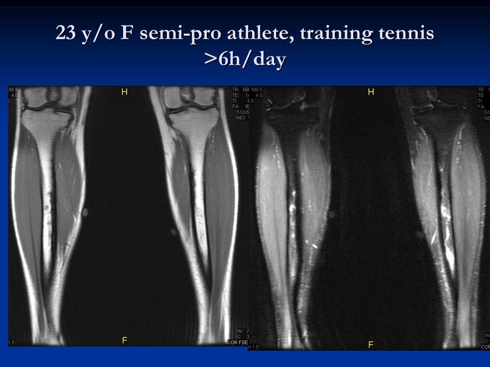 23 y/o F semi-pro athlete, training tennis >6h/day