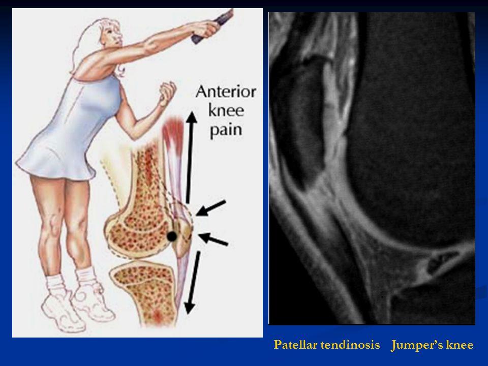 Jumper's kneePatellar tendinosis