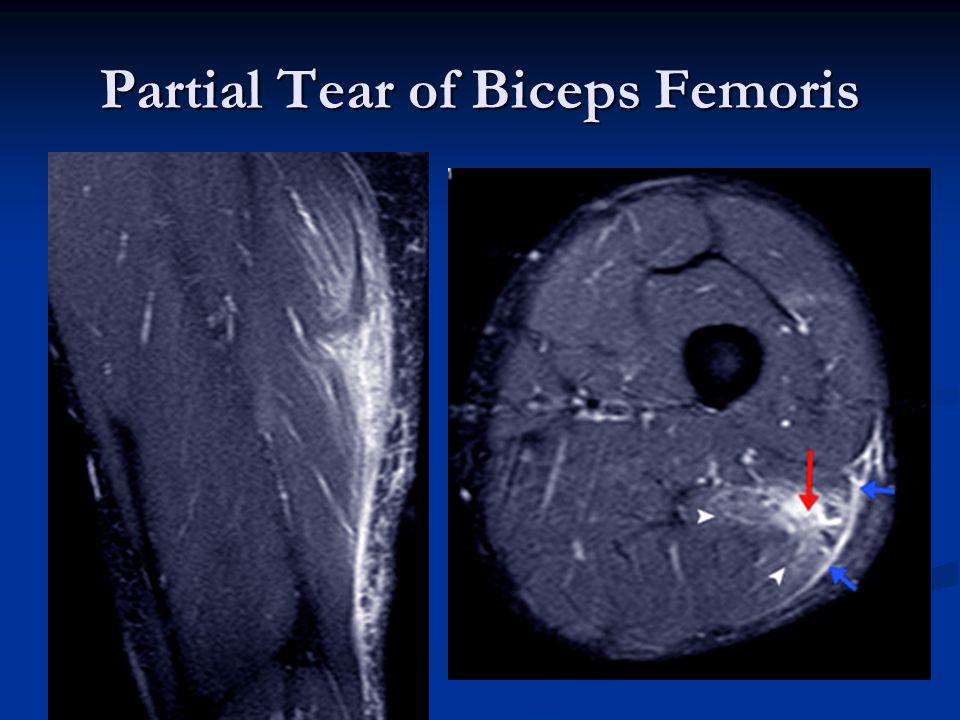 Partial Tear of Biceps Femoris