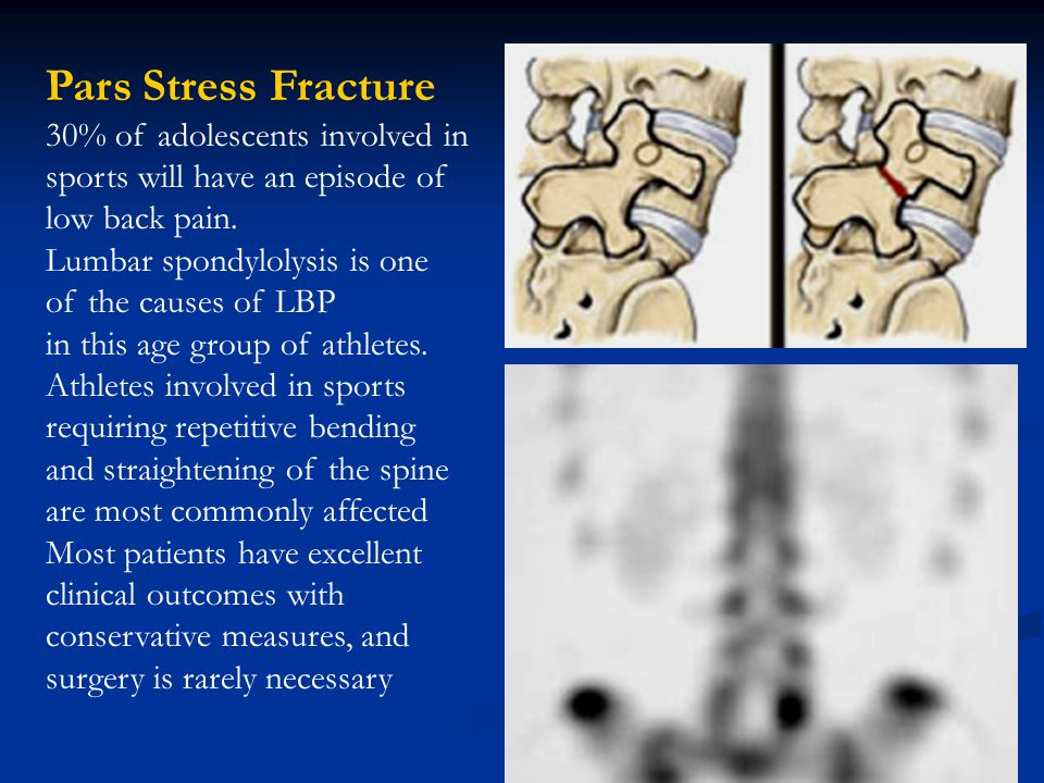 Pars Stress Fracture 30% of adolescents involved in sports will have an episode of low back pain.