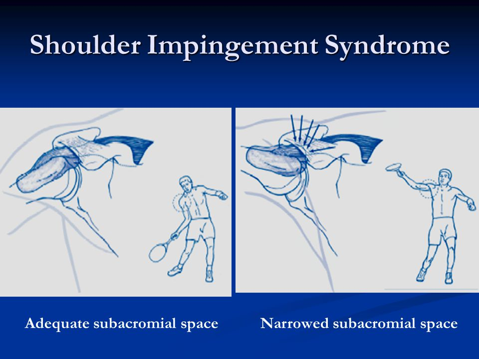 Shoulder Impingement Syndrome Adequate subacromial spaceNarrowed subacromial space