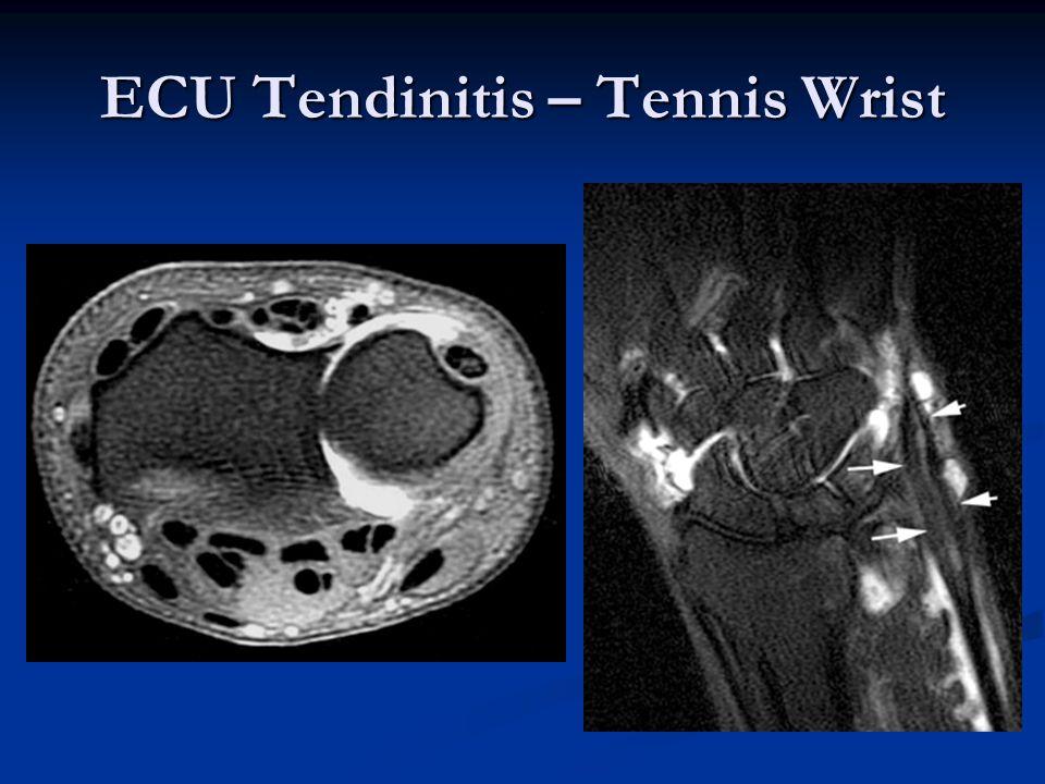 ECU Tendinitis – Tennis Wrist