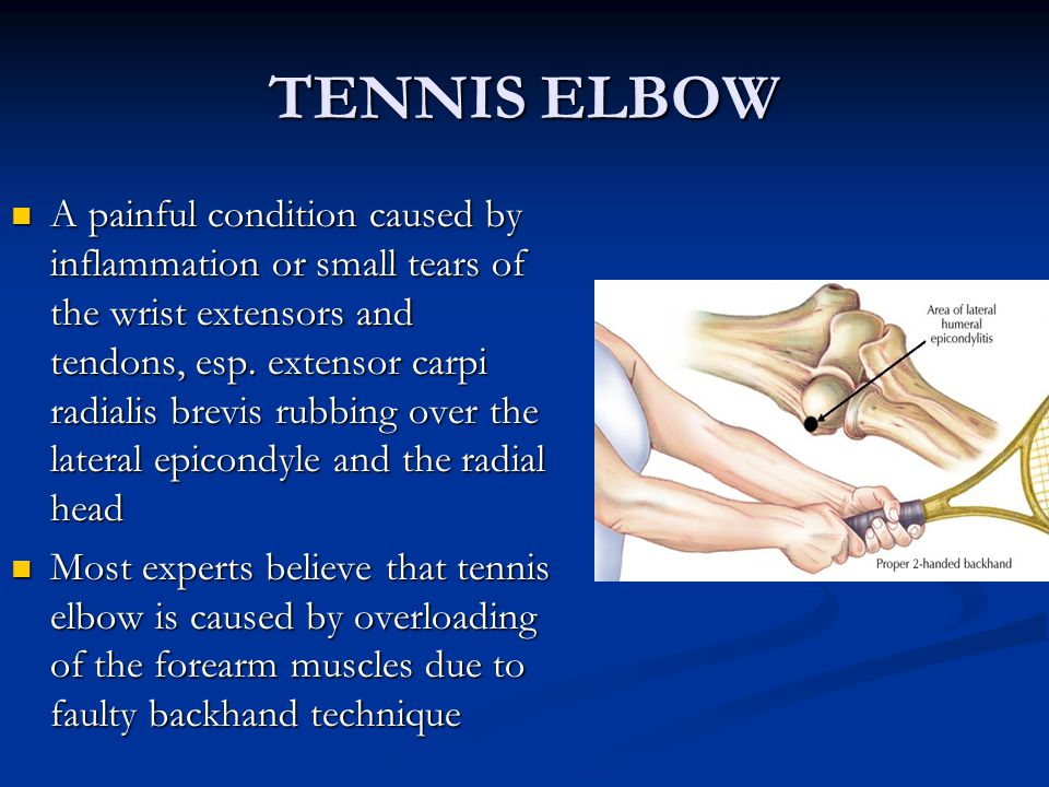 TENNIS ELBOW A painful condition caused by inflammation or small tears of the wrist extensors and tendons, esp.
