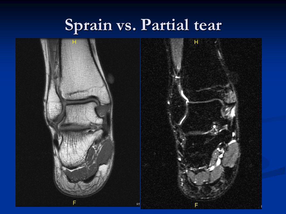 Sprain vs. Partial tear
