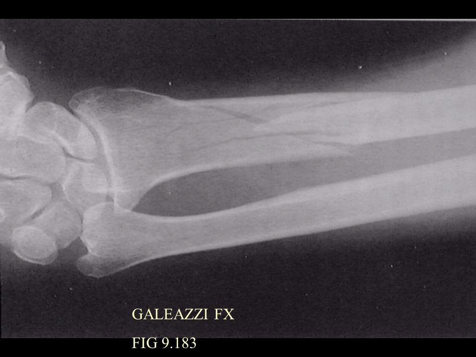 GALEAZZI FX FIG 9.183