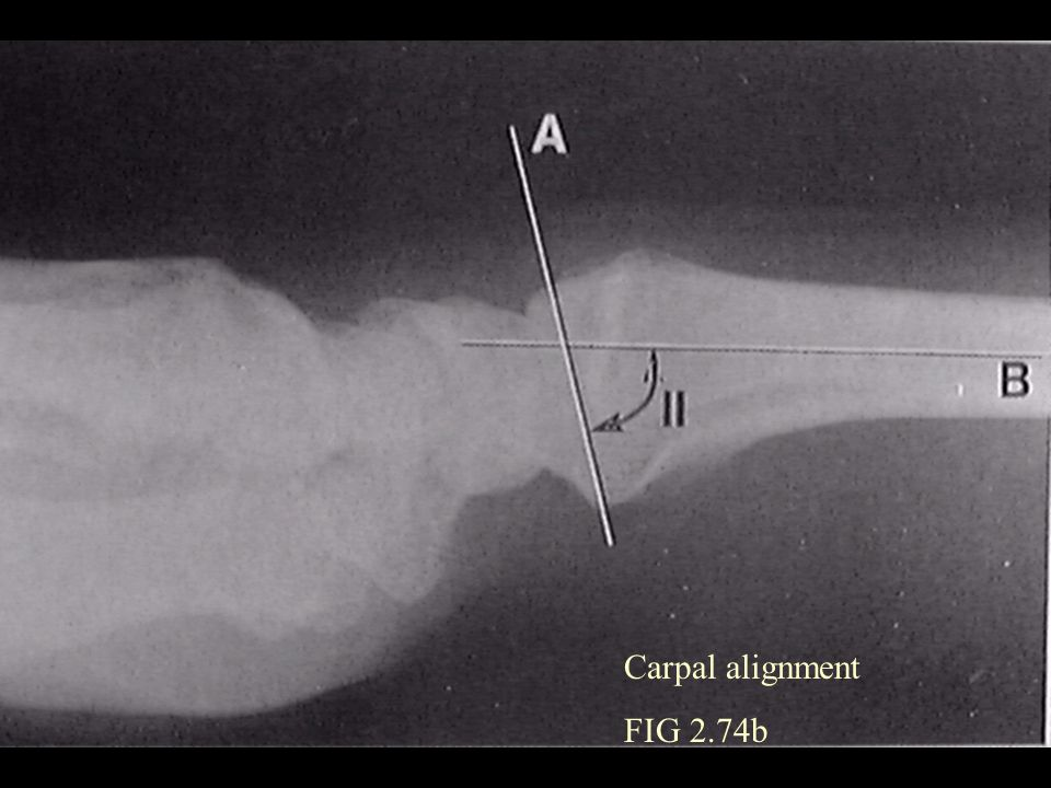 Carpal alignment FIG 2.74b