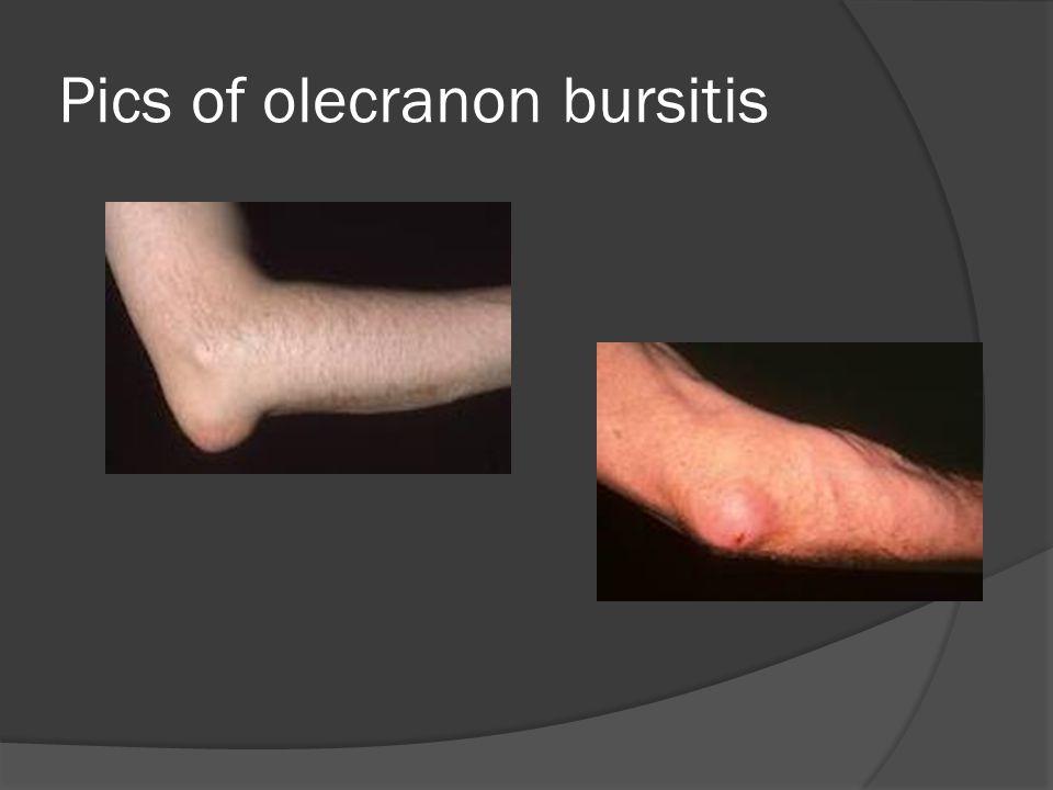 Pics of olecranon bursitis