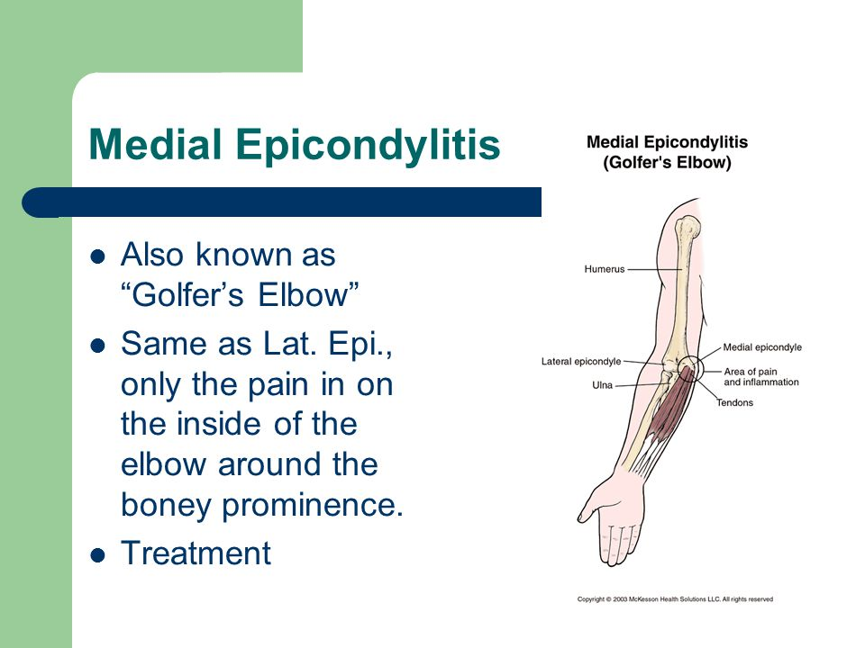 """Medial Epicondylitis Also known as """"Golfer's Elbow"""" Same as Lat. Epi., only the pain in on the inside of the elbow around the boney prominence. Treatm"""