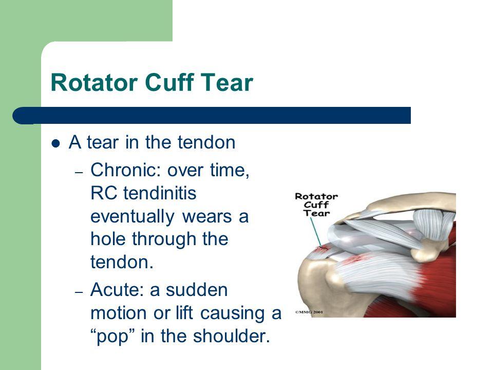 Rotator Cuff Tear A tear in the tendon – Chronic: over time, RC tendinitis eventually wears a hole through the tendon. – Acute: a sudden motion or lif