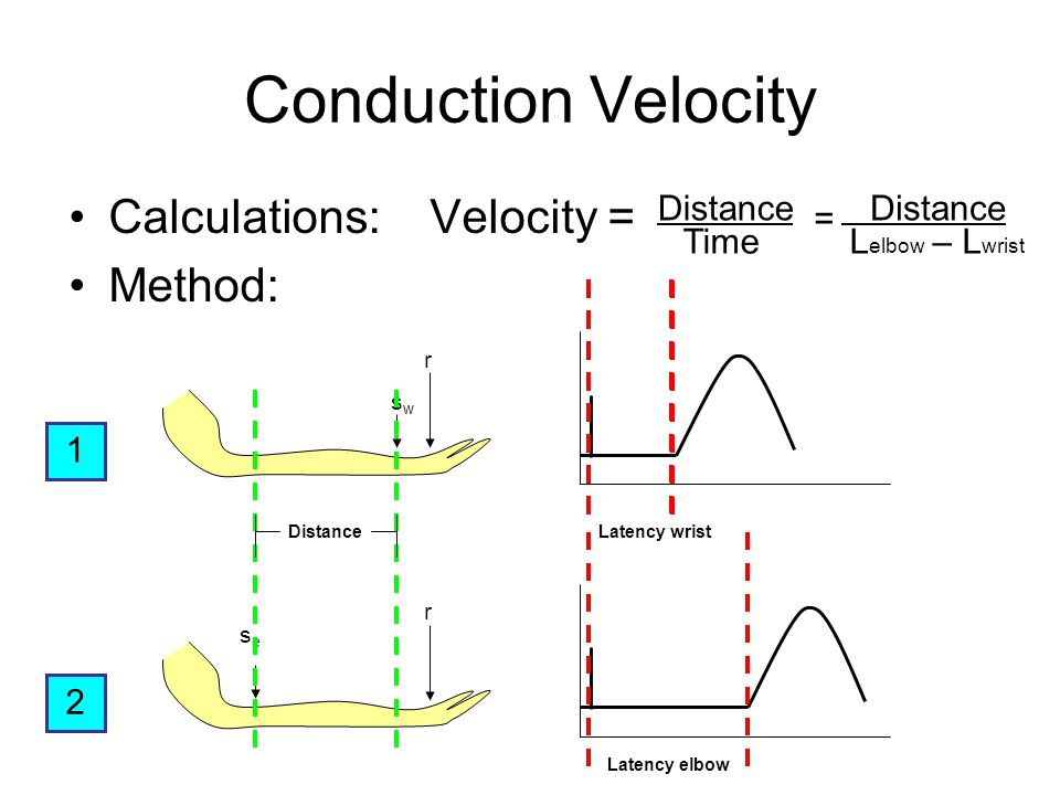 Conduction Velocity Calculations: Velocity = Method: 1 swsw r Latency wrist 2 sese r Latency elbow Distance Time Distance L elbow – L wrist =