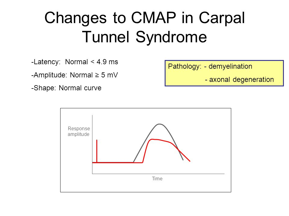 Changes to CMAP in Carpal Tunnel Syndrome -Latency: Normal < 4.9 ms -Amplitude: Normal ≥ 5 mV -Shape: Normal curve Time Response amplitude Pathology: