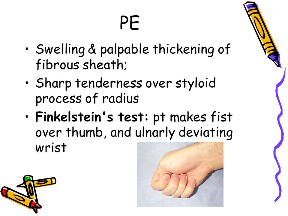 PE Swelling & palpable thickening of fibrous sheath; Sharp tenderness over styloid process of radius Finkelstein's test: pt makes fist over thumb, and