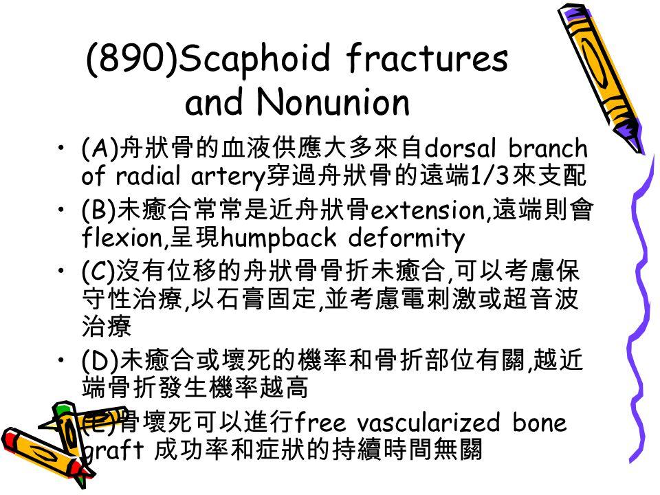(890)Scaphoid fractures and Nonunion (A) 舟狀骨的血液供應大多來自 dorsal branch of radial artery 穿過舟狀骨的遠端 1/3 來支配 (B) 未癒合常常是近舟狀骨 extension, 遠端則會 flexion, 呈現 humpb