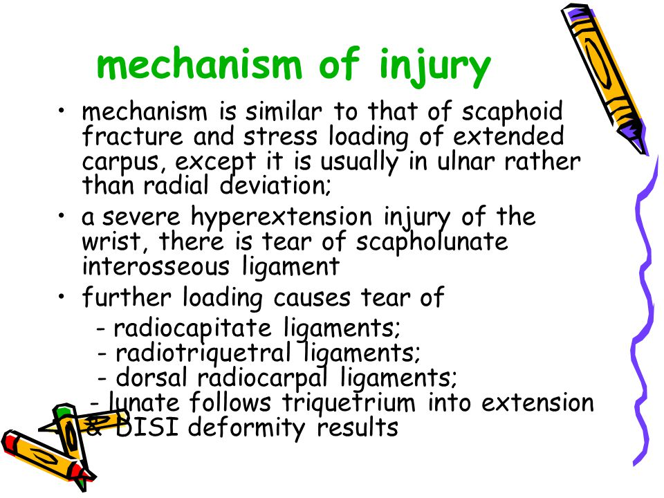mechanism of injury mechanism is similar to that of scaphoid fracture and stress loading of extended carpus, except it is usually in ulnar rather than