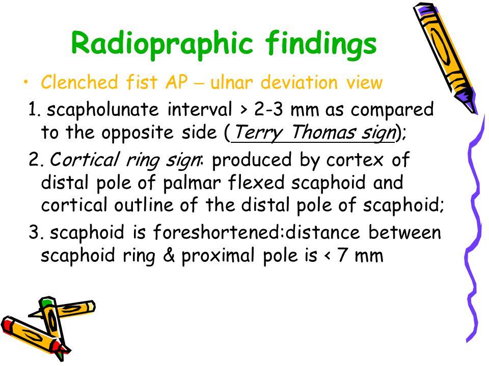 Triangular Fibrocartilage Complex ( TFCC )