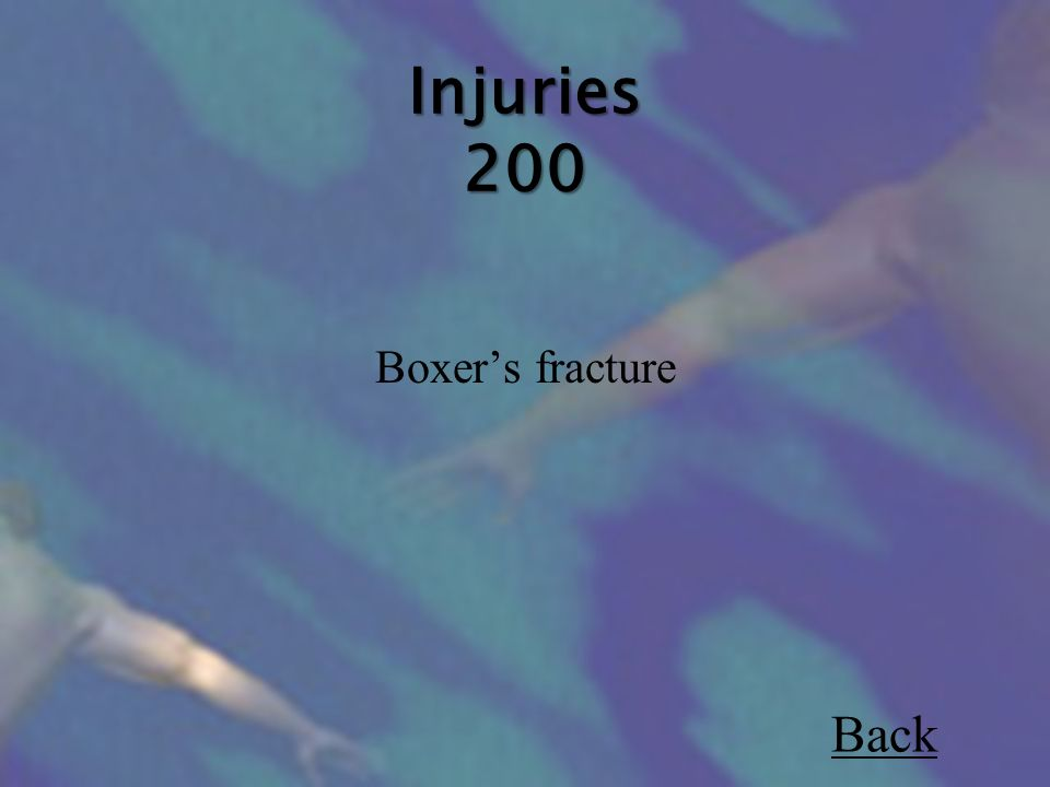Injuries 200 Boxer's fracture Back