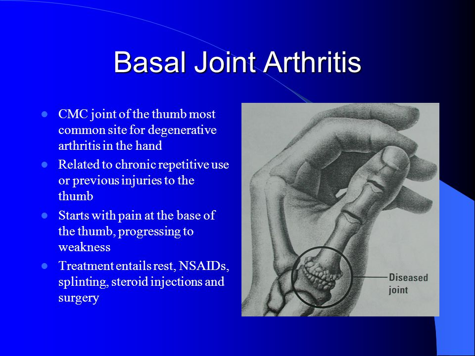 Basal Joint Arthritis CMC joint of the thumb most common site for degenerative arthritis in the hand Related to chronic repetitive use or previous injuries to the thumb Starts with pain at the base of the thumb, progressing to weakness Treatment entails rest, NSAIDs, splinting, steroid injections and surgery