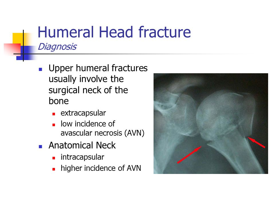 Humeral Head fracture Diagnosis Upper humeral fractures usually involve the surgical neck of the bone extracapsular low incidence of avascular necrosi