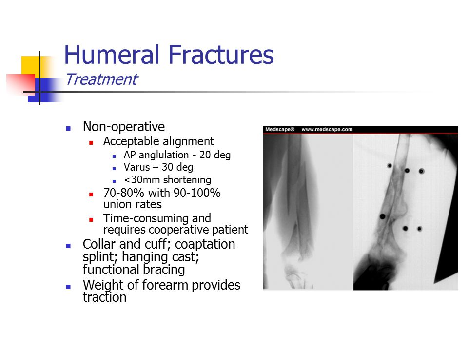 Humeral Fractures Treatment Non-operative Acceptable alignment AP anglulation - 20 deg Varus – 30 deg <30mm shortening 70-80% with 90-100% union rates