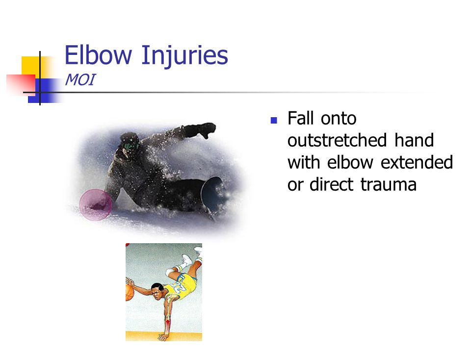 Elbow Injuries MOI Fall onto outstretched hand with elbow extended or direct trauma