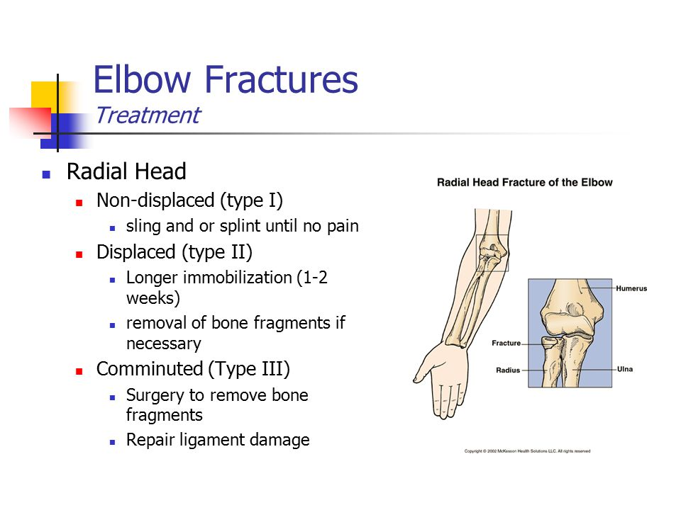 Elbow Fractures Treatment Radial Head Non-displaced (type I) sling and or splint until no pain Displaced (type II) Longer immobilization (1-2 weeks) r