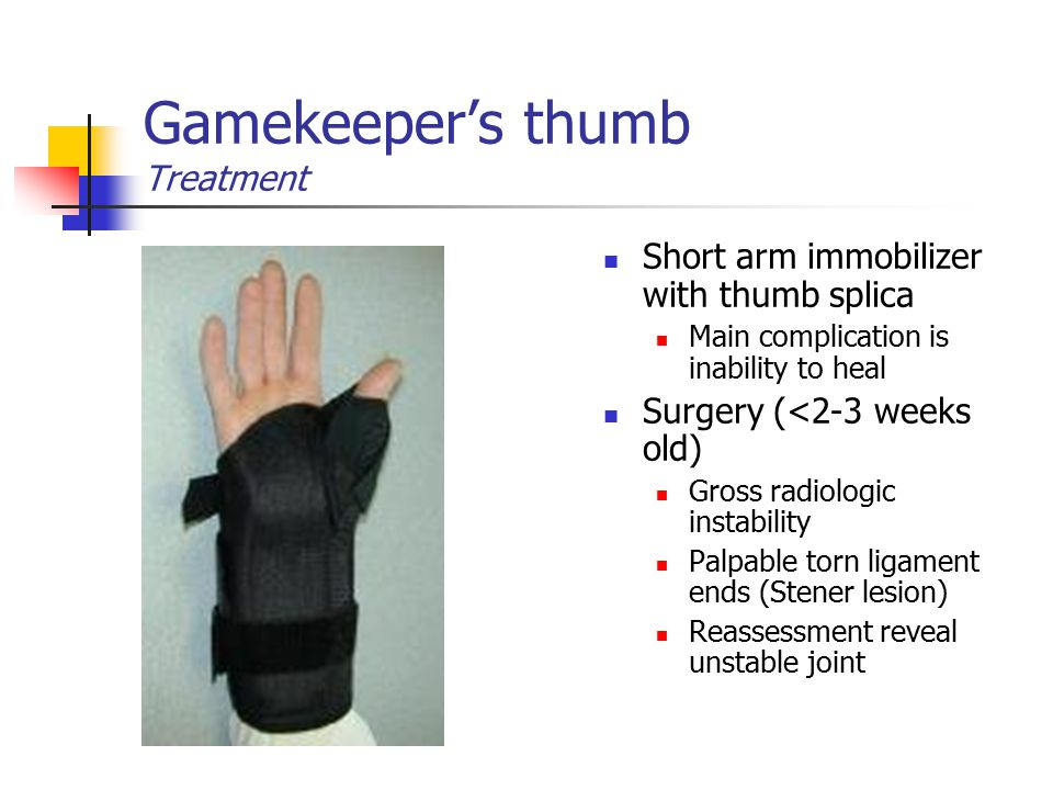 Gamekeeper's thumb Treatment Short arm immobilizer with thumb splica Main complication is inability to heal Surgery (<2-3 weeks old) Gross radiologic