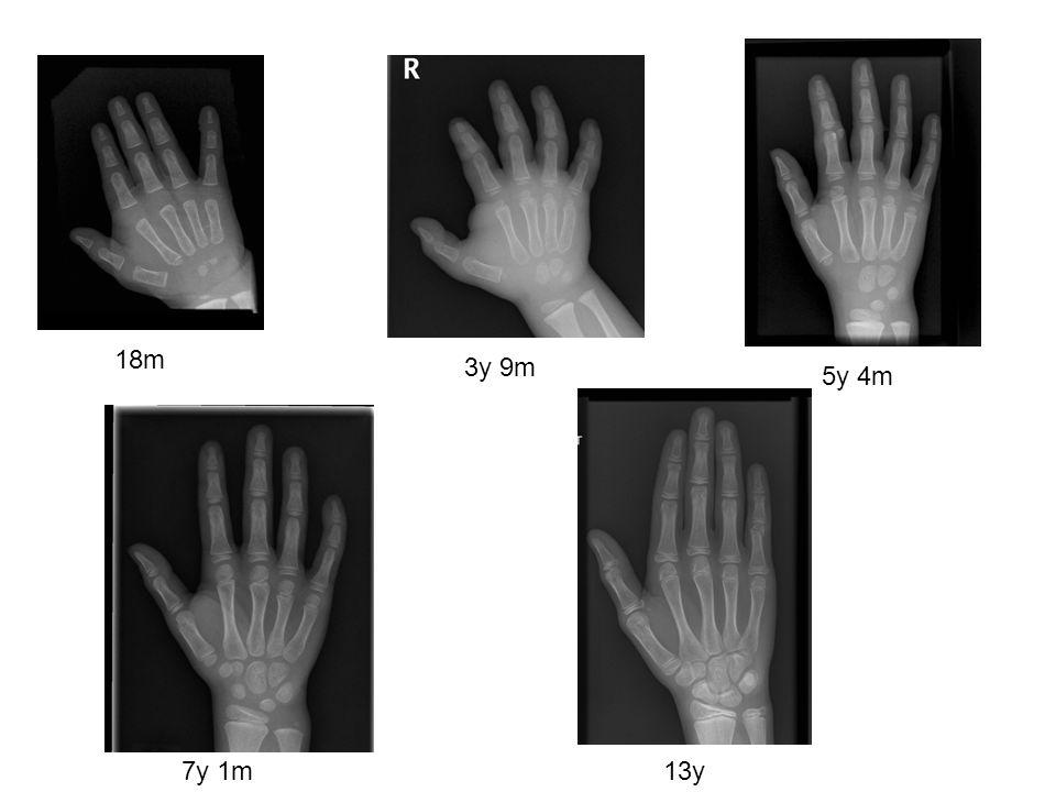 Ossification - variable timing 2y 11m 6y 11m 5y 4m 7y 1m