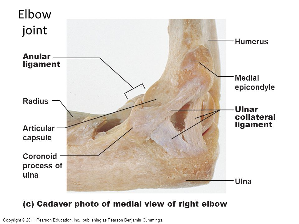 Copyright © 2011 Pearson Education, Inc., publishing as Pearson Benjamin Cummings. Anular ligament Humerus Medial epicondyle Ulnar collateral ligament