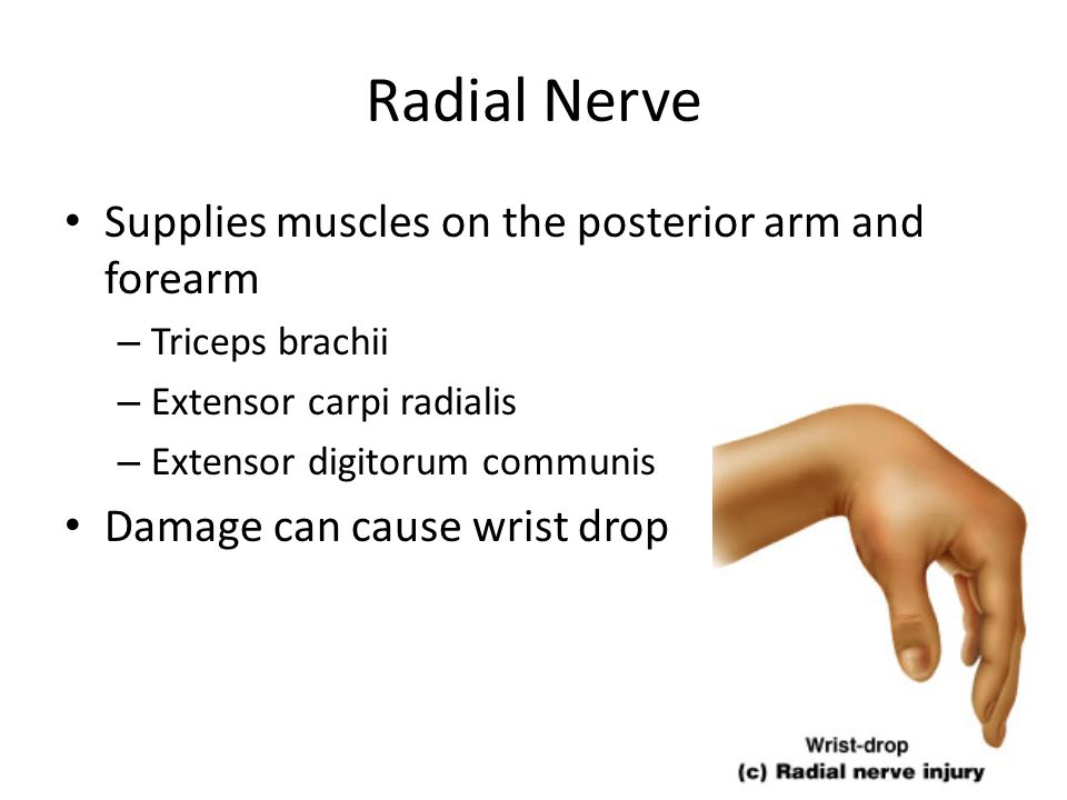 Radial Nerve Supplies muscles on the posterior arm and forearm – Triceps brachii – Extensor carpi radialis – Extensor digitorum communis Damage can ca