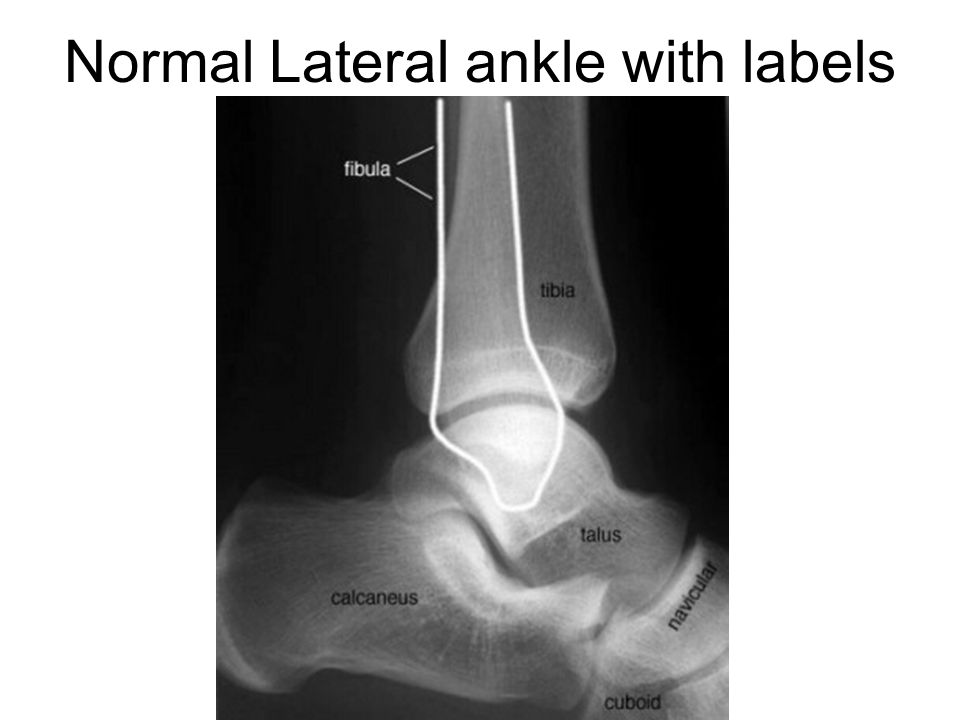 Normal Lateral ankle with labels