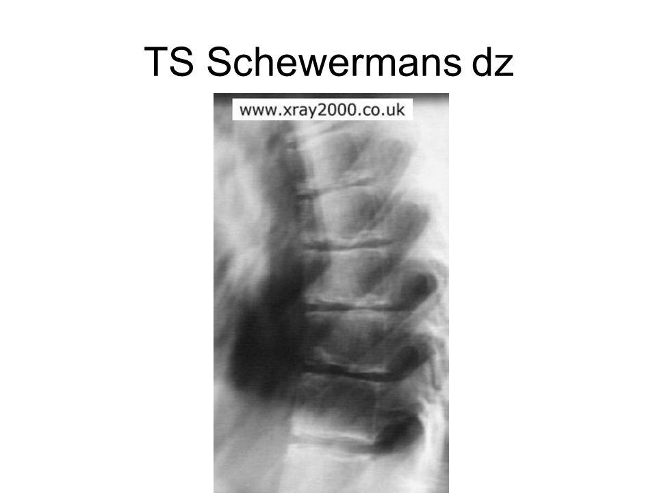 TS Schewermans dz