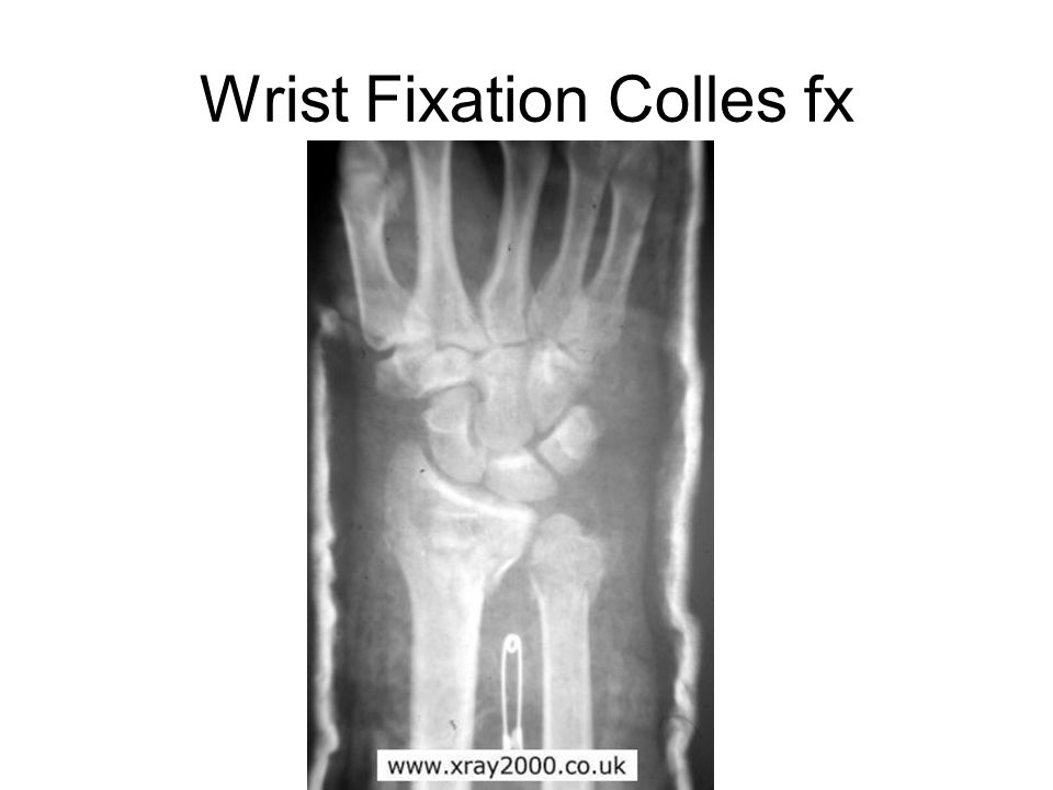 Wrist Fixation Colles fx