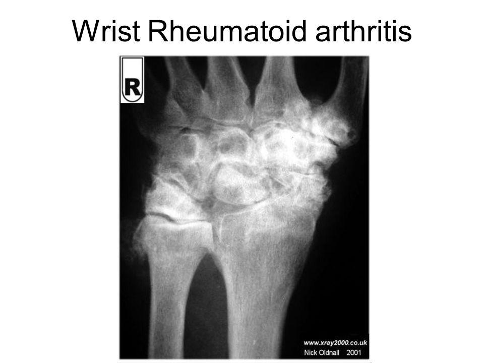 Wrist Rheumatoid arthritis