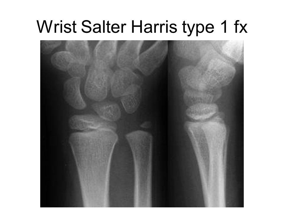 Wrist Salter Harris type 1 fx
