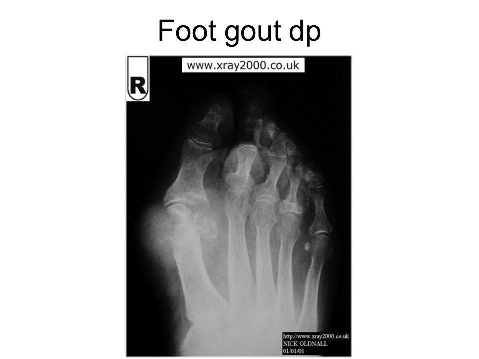 Foot gout dp