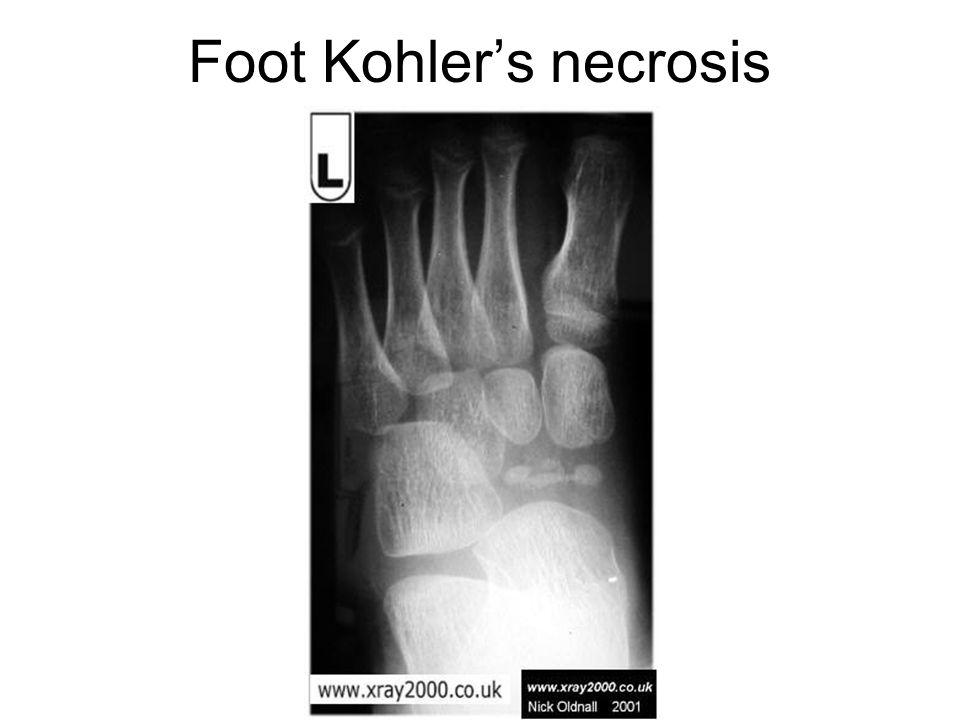 Foot Kohler's necrosis
