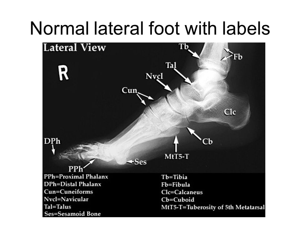 Normal lateral foot with labels