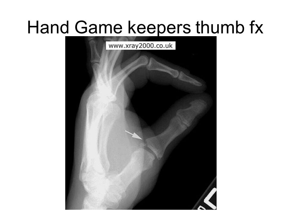Hand Game keepers thumb fx