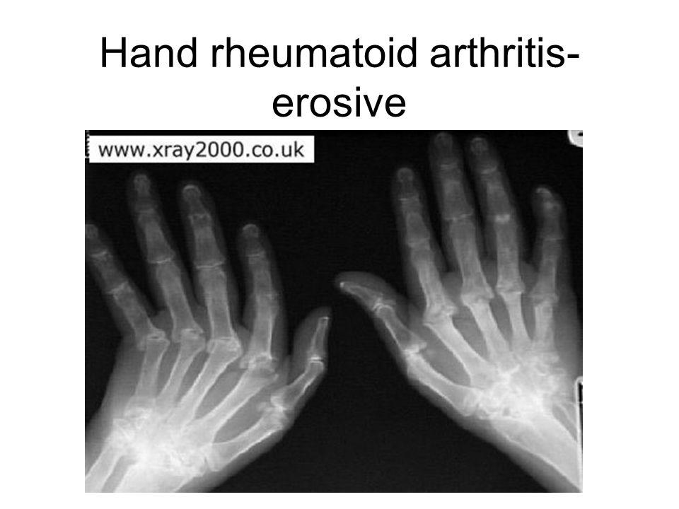 Hand rheumatoid arthritis- erosive