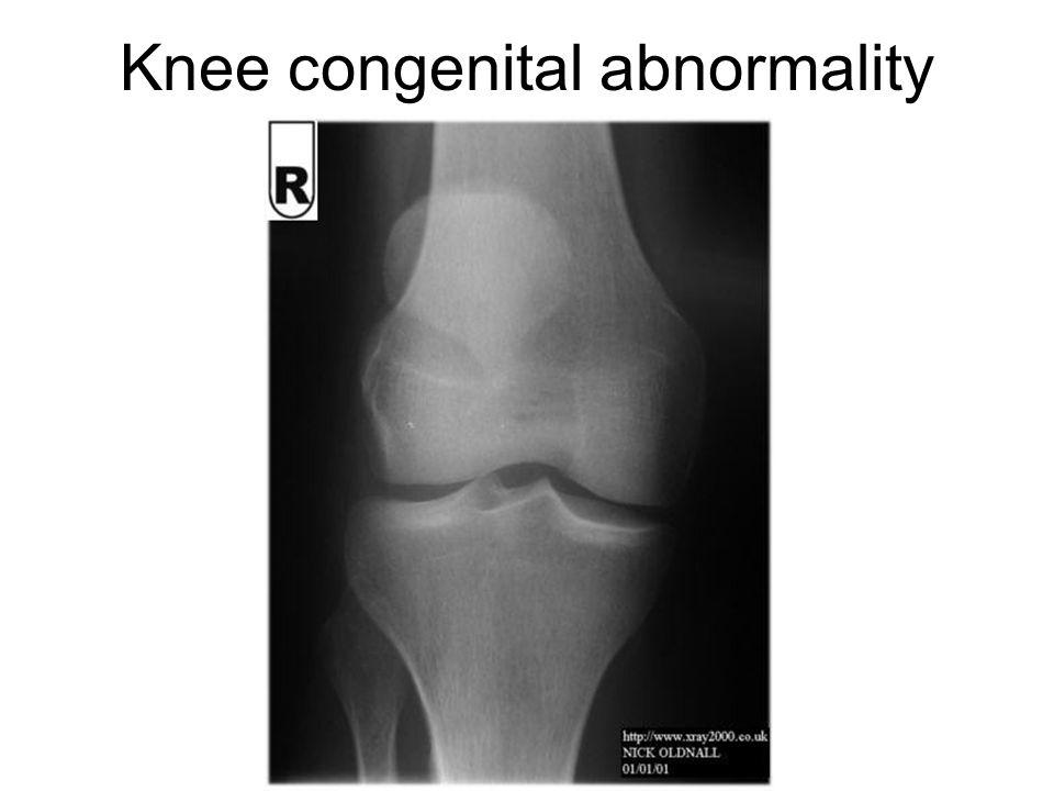 Knee congenital abnormality