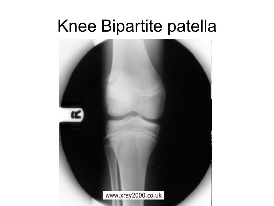Knee Bipartite patella