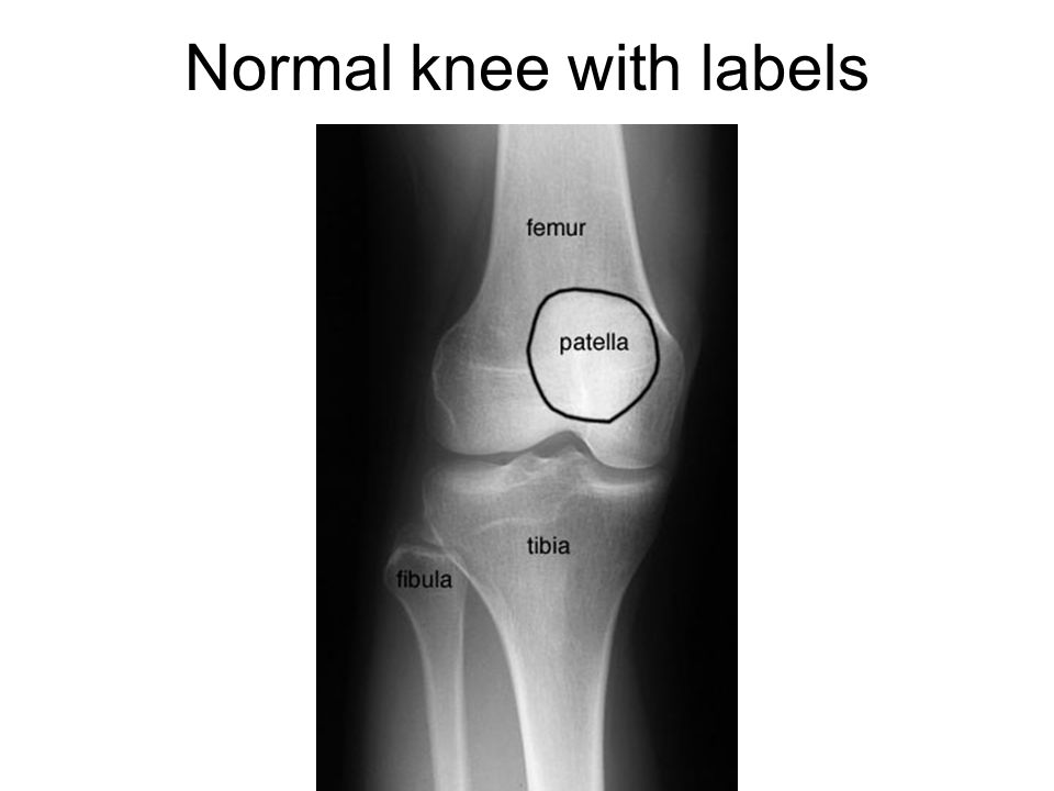 Normal knee with labels