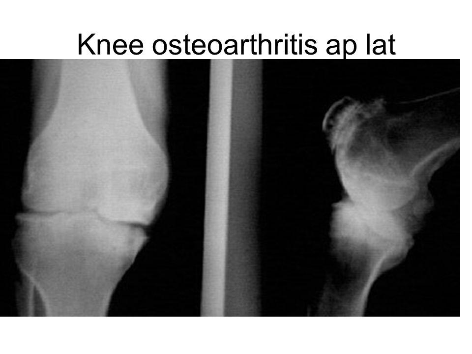 Knee osteoarthritis ap lat