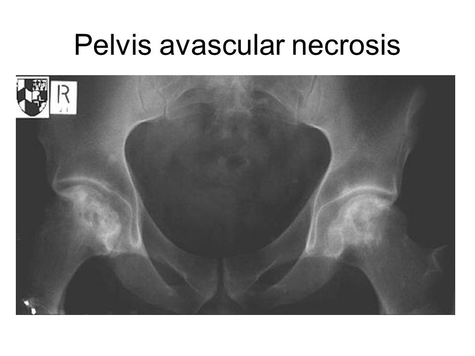 Pelvis avascular necrosis