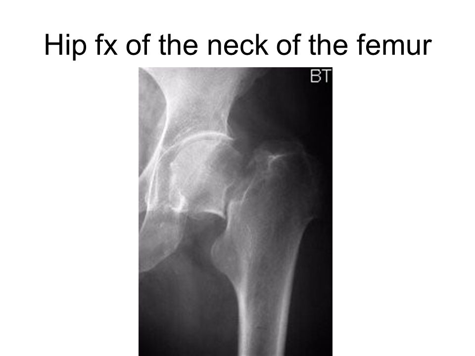 Hip fx of the neck of the femur
